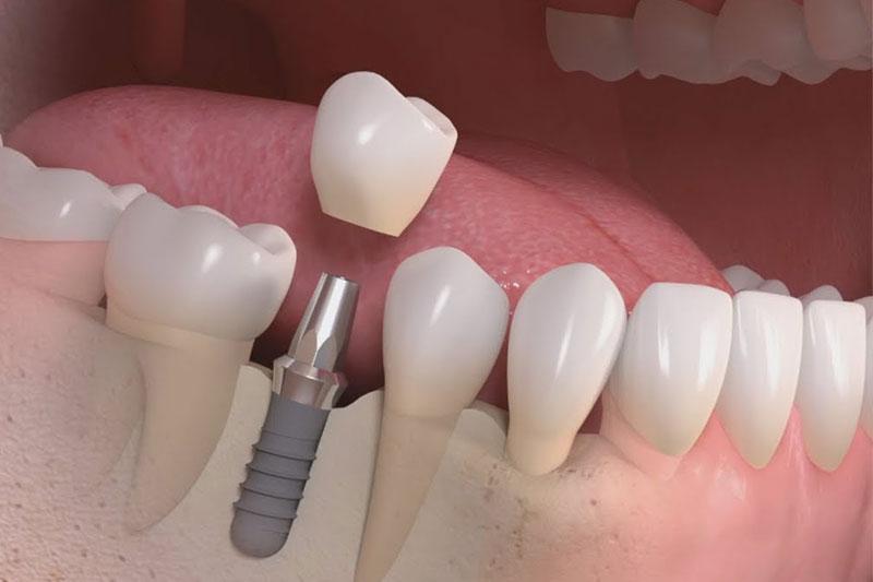 Implants--&-Dentures